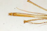 Mouthparts of a mosquito, 60x